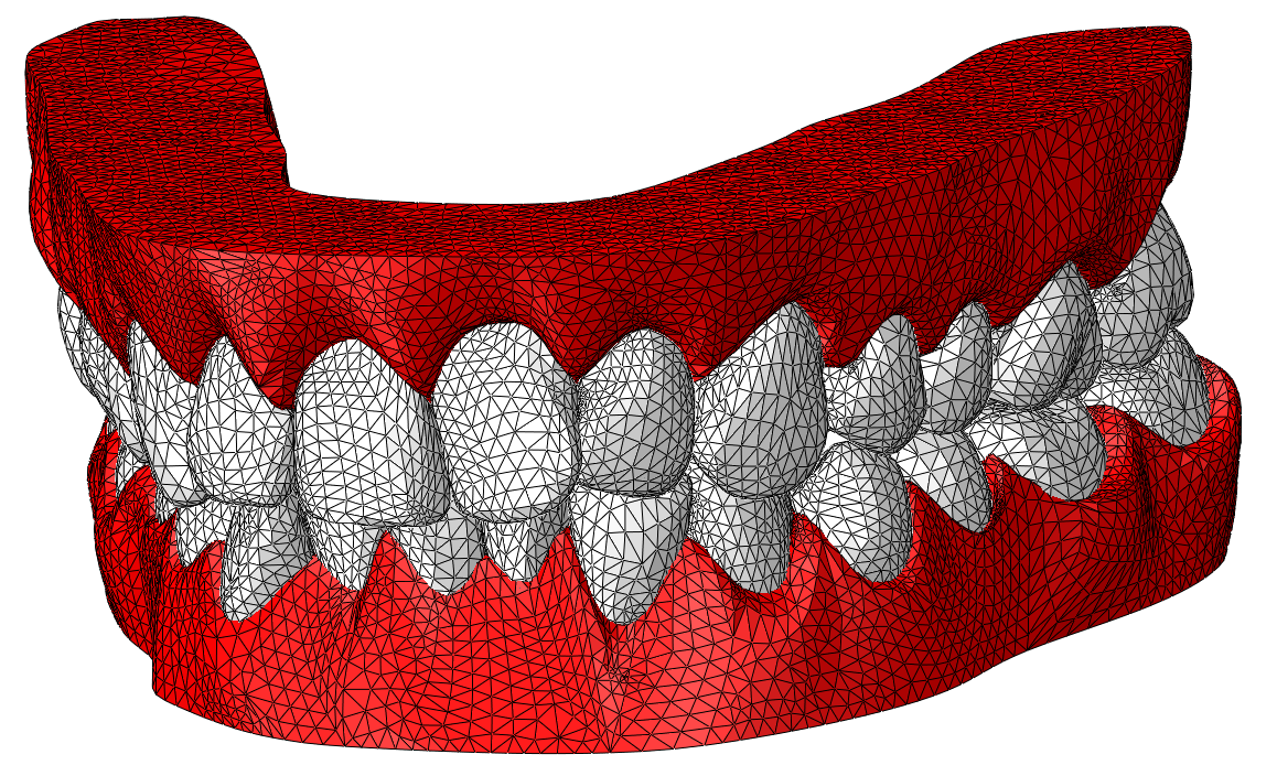 jaw 3d scan surface design
