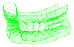 Point Cloud Jaw