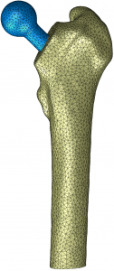 CT Abaqus Femur Implant Mesh
