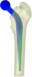CT Abaqus Femur Implant Strain1