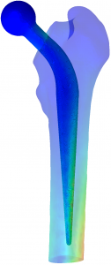 CT Abaqus Femur Implant Strain2