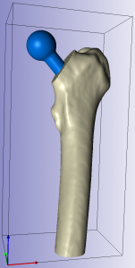 CT ScanIP Femur Implant Sectioned