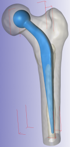 CT ScanIP Femur Implant