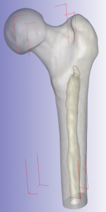 CT ScanIP Femur Translucent
